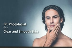 Why IPL for Rosacea?