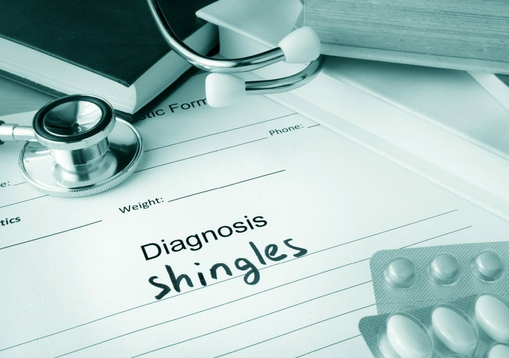 Shingles 08 19